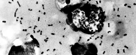 """Вспышка эпидемии легочной чумы, более страшной, чем бубонная, унесла жизни 39 человек. """"86 человек заразились чумой, 39 из них уже мертвы"""", говорилось в заявлении Минздрава от 12 декабря."""
