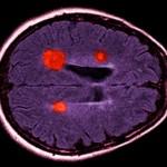 Негативные стороны конкурентной организации науки: психобиологический анализ