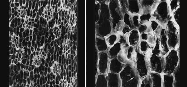 Рис. 2. Полиморфизм устьичных аппаратов у пермского хвойного Ullmannia cf. bronnii Goeppert. Абортированный устьичный аппарат (стрелка) в виде скопления мелких мезогенных клеток, образующих в зрелом мезоперигенном аппарате (справа) кольцо побочных клеток, прерванное вклинивающейся перигенной клеткой. Изображение «Экология и жизнь»