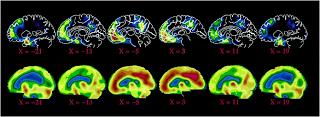 Открытие дефолт-системы мозга - наиболее значительное событие последних лет. Оно показывает, что Предоставленный самому себе, человеческий мозг естественным образом включается в размышления о социальных отношениях (точней, поддерживает некий постоянный уровень связанности и созависимости между нами)