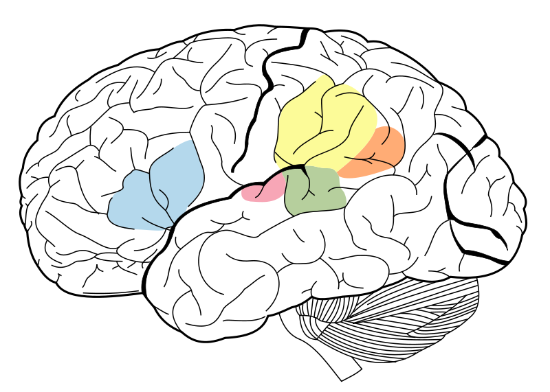 Language Areas of the brain. The angular gyrus is represented in orange, supramarginal gyrus is represented in yellow, Broca's area is represented in blue, Wernicke's area is represented in green and the primary auditory cortex is represented in pink.