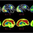 Предоставленный самому себе, человеческий мозг естественным образом включается в размышления о социальных отношениях.