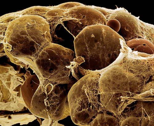 Клетки бурой жировой ткани (фото Steve Gschmeissner).