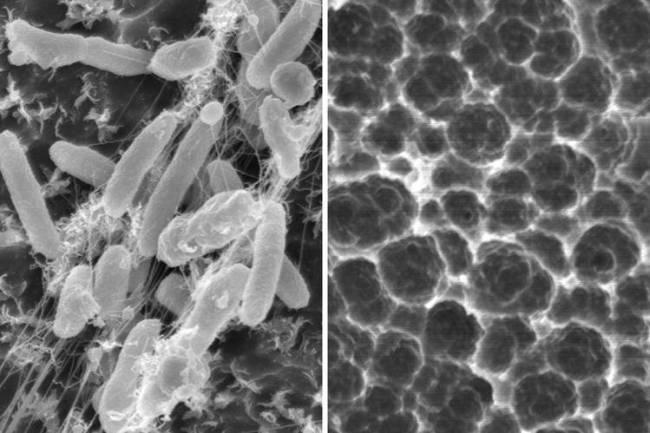 Бактерии Ideonella sakaiensis и следы их пищевой деятельности на полиэтилентерефталатной пленке. Фото: Yoshida et al., 2016.