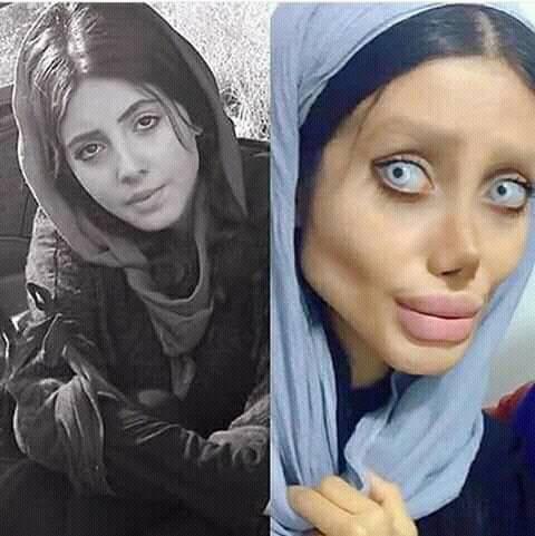 Иранская девушка, изуродовавшая себя под Анжелику Джоли