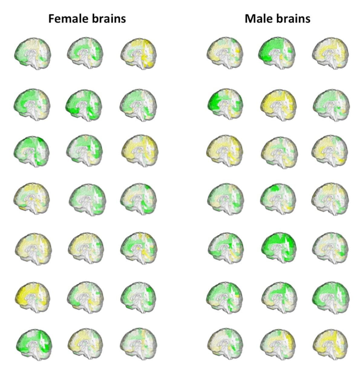 """""""Иллюстрация объема (зеленым - большой, желтым - маленький) областей мозга у 42 взрослых людей, показывающая пересечения между теми формами, которые может принимать мозг у мужчин и у женщин."""""""
