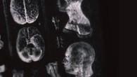 """Мастерская критика Ребеккой Джордан-Янг методических недостатков исследований связи между тестостероном и гендерными различиями полов. Среди прочего ею показано, что вера в наличие данной связи базируется не на опытах, а до них, их убеждения в """"естественности"""" межполовых различий в психологии, способностях (хотя в той же степени они могут быть ..."""