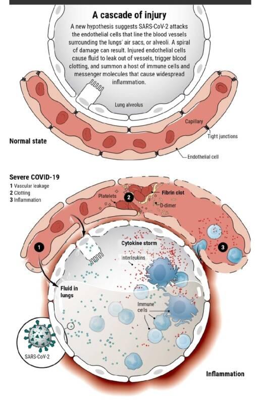 Процесс образования тромбов при заражении COVID-19